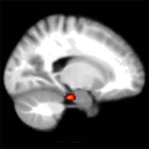 brain entorhinal region