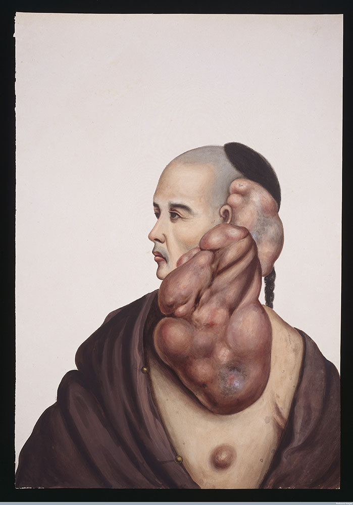 man with tumour Lam Qua