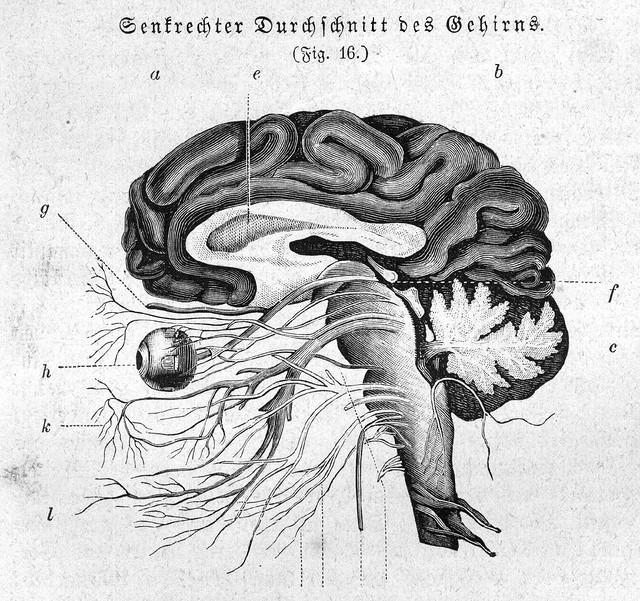 A brain diagram